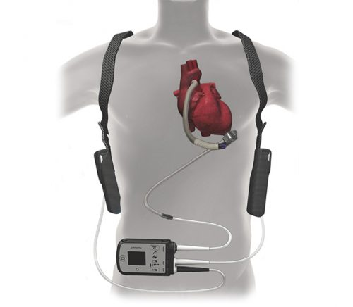 Not the Apple IPhone 11.  | Source: cardiovascular.abbott